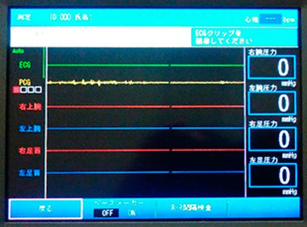 血圧脈波検査2