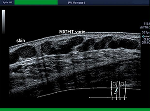 下肢血管超音波検査1